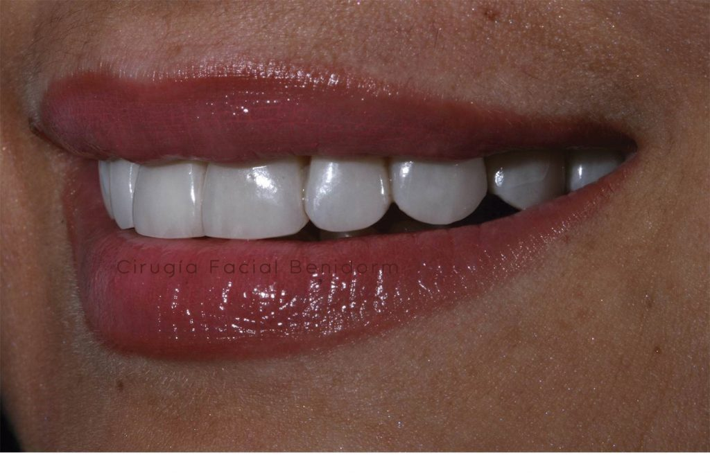 VENEERS, IMPLANTOLOGY AND DENTAL COSMETICS IN BENIDORM, SPAIN