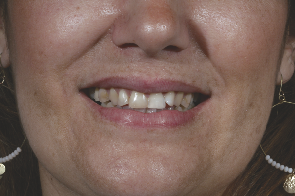 quality Veneers before in Spain Carillas 1 antes
