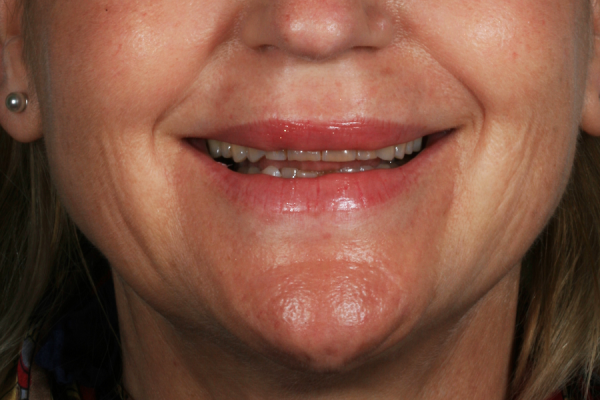 Dental aesthetics in Benidorm before and after