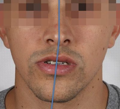 maxillofacial, orthognathic surgery for jaw problems, Spain