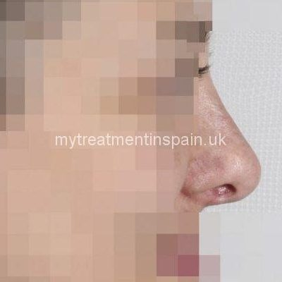 rhinoplasty in Spain before and after