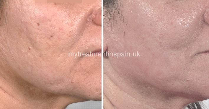 Medium peeling tca in Spain. before and after cases