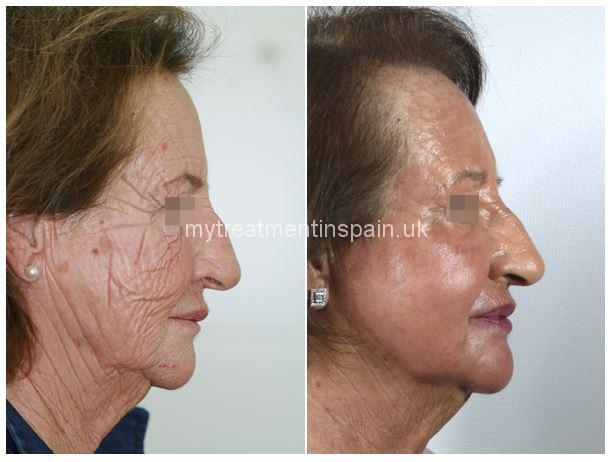 Deep phenol peeling before and after 1 in Benidorm, Spain