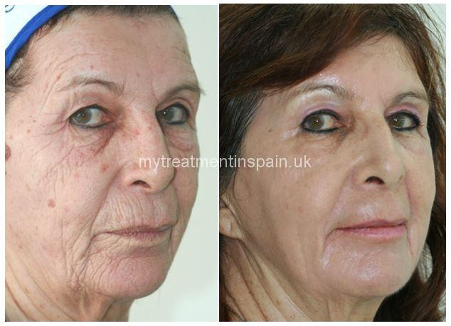 rejuvenation peeling before and after 1 in Benidorm, Spain