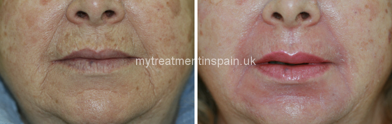 phenol peeling for the mouth area, rejuvenation treatment in Spain