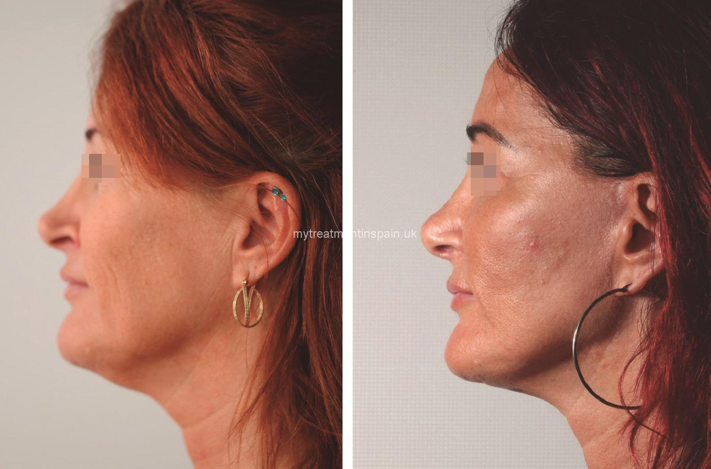 FACIAL LIFTING BEFORE AND AFTER