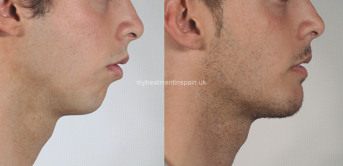 Chin surgery, mentoplasty or mandibular surgery in Spain. Plastic cases before and after