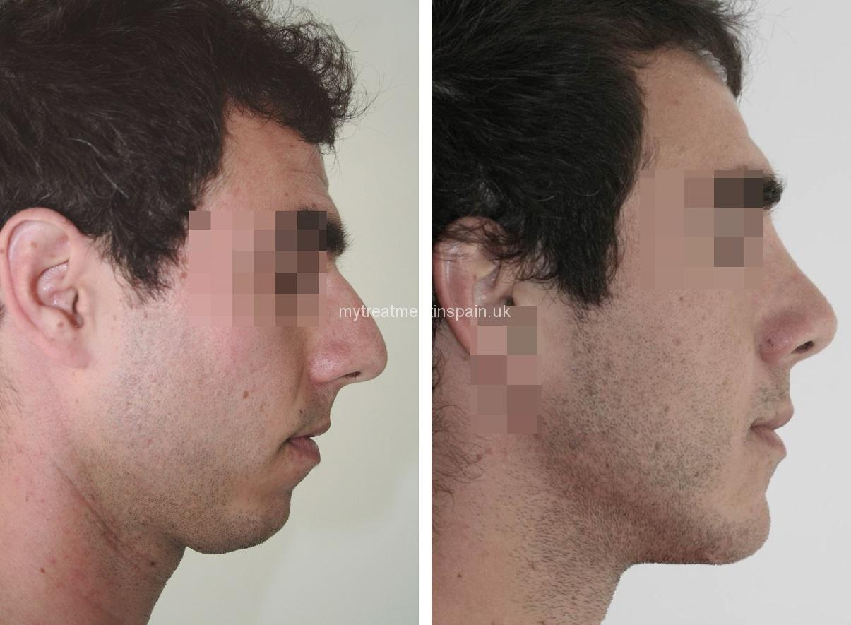 Mentoplasty chin surgery man before and after