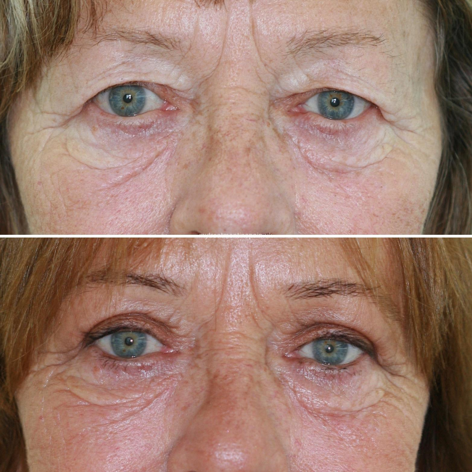 blepharoplasty in Spain before and after cases