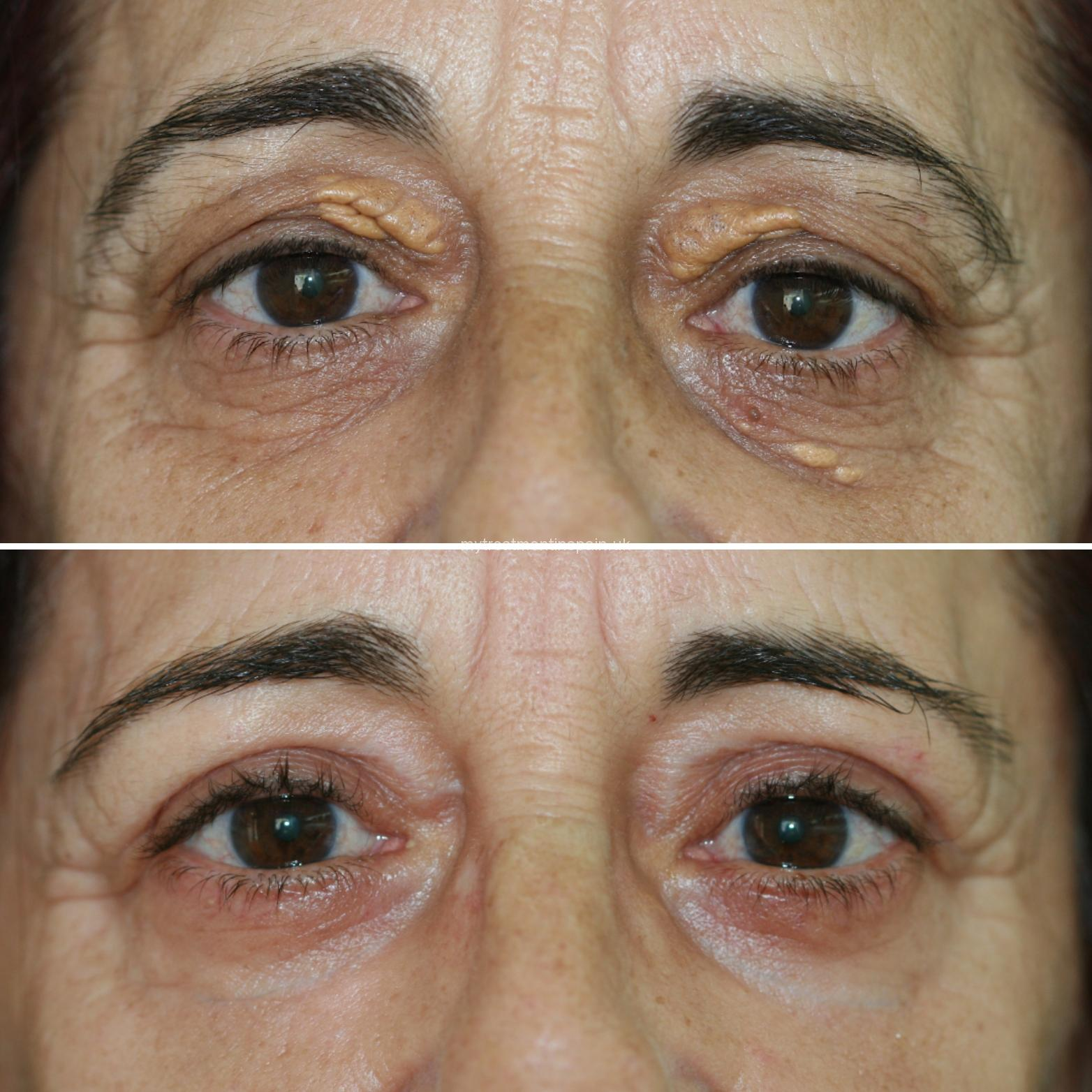 What is the correct age to undergo a blepharoplasty? Benidorm, Alicante, Spain