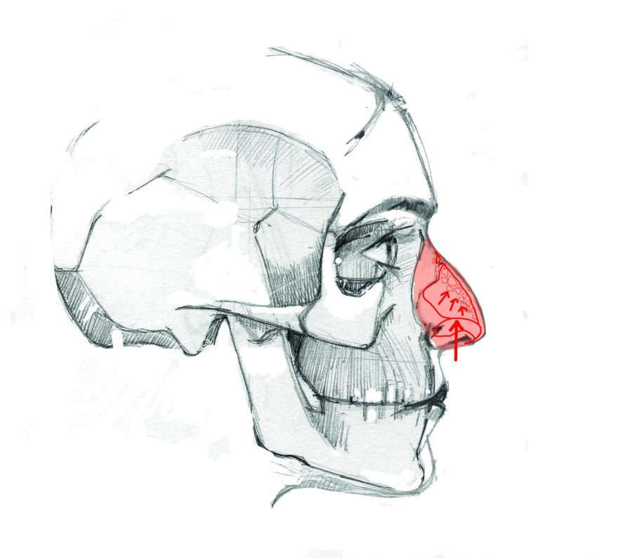 traditional rhinoplasty, breaks the hump or easel of the nose
